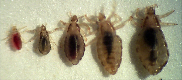 head-lice-looks-like